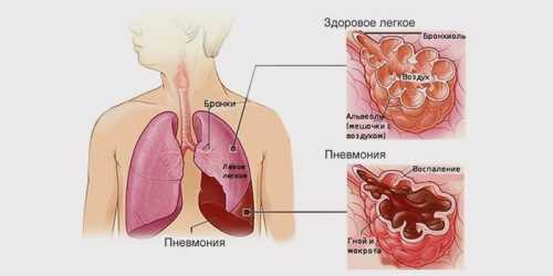 Признаки воспаления лёгких у взрослых, причины,