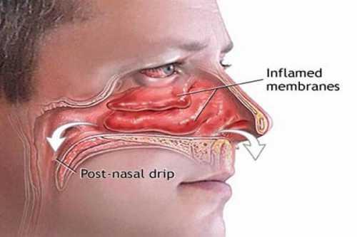 Очищение носа, лобных и гайморовых пазух