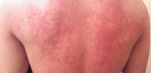 Как бороться с аллергией на солнце