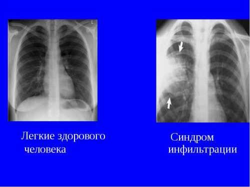 Что показывает флюорография