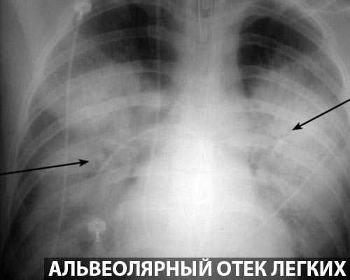 Формирование изображения становится возможным после прохождение через грудную клетку потока рентгеновских лучей