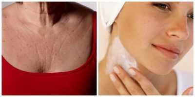 Уход за кожей шеи и зоной декольте: 5 эффективных советов