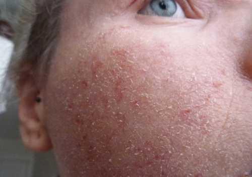 Экзема на лице мокнущая, сухая, микробная, себорейная, микотическая