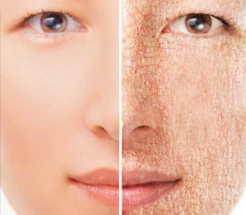 Сухая кожа лица - что делать