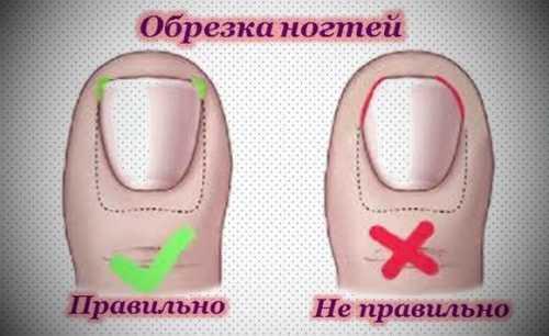 5 главных причин вросших ногтей